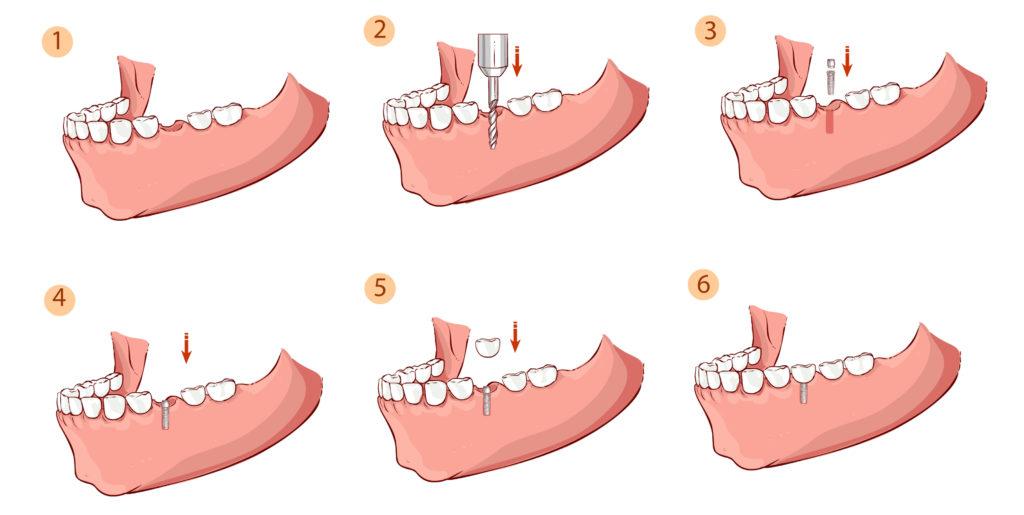 תהליך השתלת שיניים,השיניים קודם כל קודחים אל