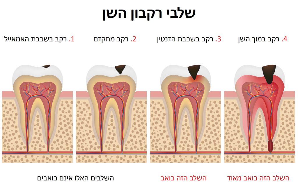 רקבון השן