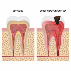 שן הזקוקה לטיפול שורש מול שן בריאה