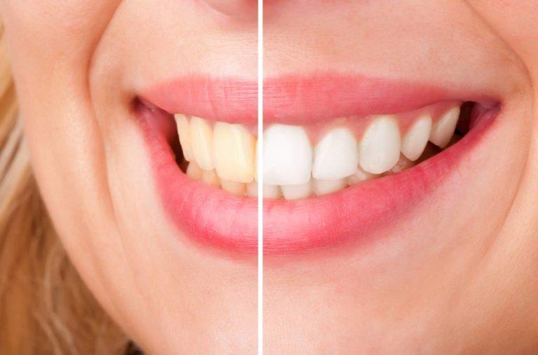 ציפוי לצרכי הלבנת שיניים