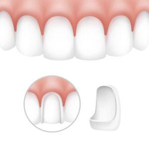 כיצד ציפוי שיניים מורכב על השן