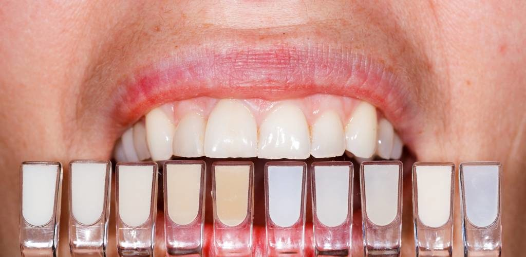 בחירת גוון לציפוי שיניים