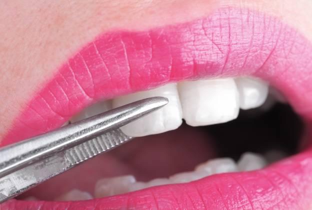 ציפוי שיניים מוצלח