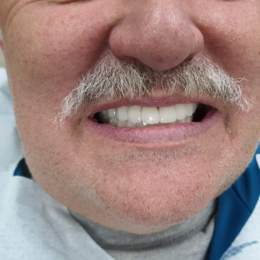 עובדות על השתלות שיניים